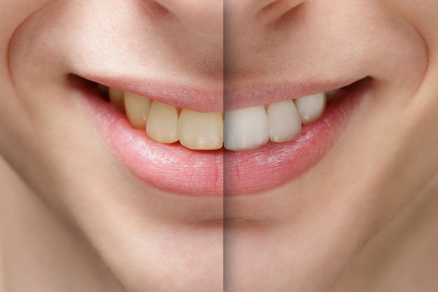 Professional Teeth Whitening McLean County Dental